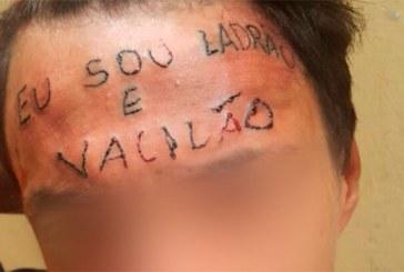 Adolescente tatuado na testa passa pela primeira sessão para remover frase