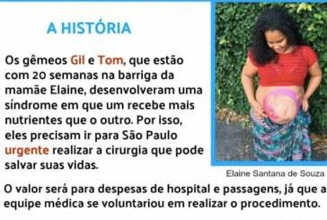 Grávida de gêmeos já está em São Paulo para fazer cirurgia